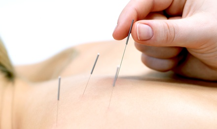 One, Two, or Three 60-Minute Acupuncture Sessions at Chen's Acupuncture and Wellness Center (Up to 87% Off)