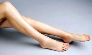 H & W Medical Spa: Two or Four Spider Vein-Removal Treatments at H & W Medical Spa (Up to 54% Off)