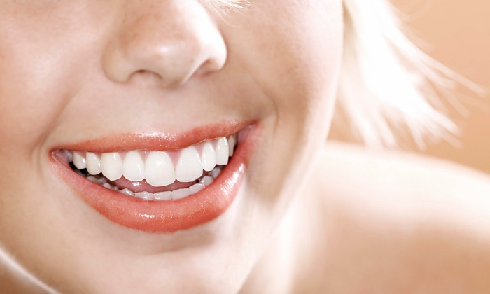 Tooth Fairy Teeth Whitening - Eastview Manor: $93 for $169 Towards an in Office Teeth Whitening with Take Home 6 month Whitening Kit