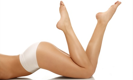 Six Laser Hair-Removal Treatments for a Small, Medium, or Large Area at Laser Loft (Up to 79% Off)
