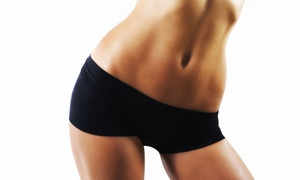 Beverly Hills Cosmetic Centers: One, Two, or Four Ultrasonic-Cavitation Treatments at Beverly Hills Cosmetic Centers (Up to 86% Off)