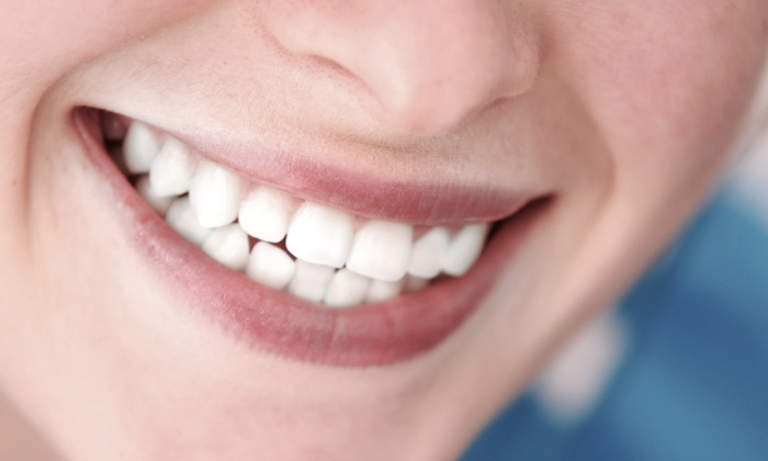Smile Arts of NY - Midtown South Central: Zoom Teeth Whitening or Dental-Implant Procedure with Porcelain Crown at Smile Arts of NY (Up to 84% Off)