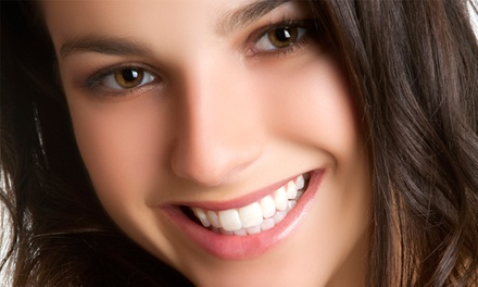 $85 for an In-Office LED Teeth-Whitening Treatment at Mona's Dermatherapy ($199 Value)