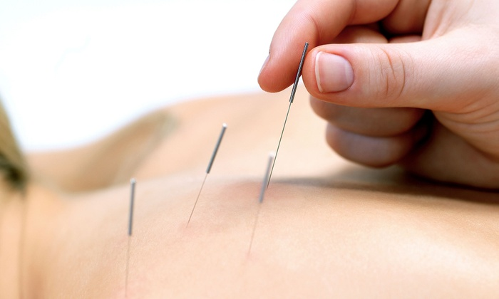 Berkeley Community Acupuncture and Massage - Berkeley: 90-Minute Acupuncture Treatment or Massage at Berkeley Community Acupuncture and Massage (Up to 59% Off)