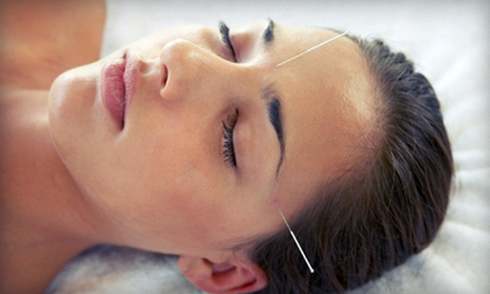 Boulder Sports Acupuncture - Baseline Sub: One Consultation and Acupuncture Session or Three Acupuncture Sessions at Boulder Sports Acupuncture (Up to 63% Off)