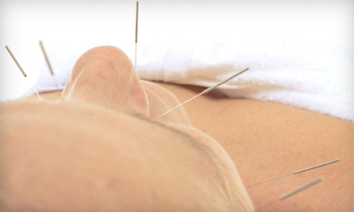 Tian Tian Holistic Spa - Milton: One or Two Acupuncture Treatments at Tian Tian Holistic Spa in Alpharetta (Up to 73% Off)