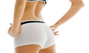 Limitless Medspa: Three, Six, or Nine Yolo Laser Body-Contouring Treatments at Limitless Medspa (Up to 64% Off)