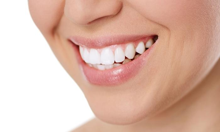 k dental office - k dental office: 透明度・強度を兼ね揃えた、注目の最先端素材で美しい口元へ≪e.max(イーマックス)クラウン治療1本≫3枚まで利用可 @k dental office