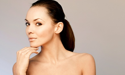 20 or 40 Units of Botox at Vickmay Skin and Body Spa (Up to 46% Off)