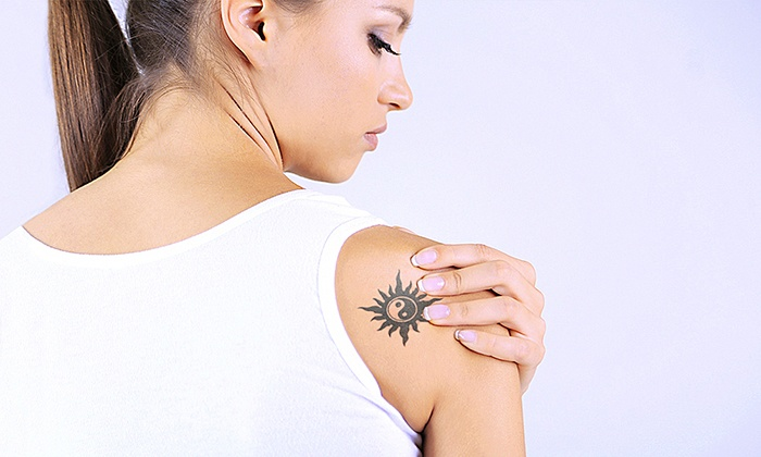 Dr. Tatt2BGone - Harrison: Three Laser Tattoo-Removal Sessions for an Area Up to 3, 6, or 9 Sq. In. at Dr. Tatt2BGone (Up to 82% Off)