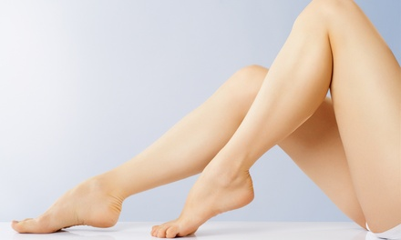 20 or 40 Units of Xeomin at Vena – The Varicose Vein Institute (Up to 65% Off)
