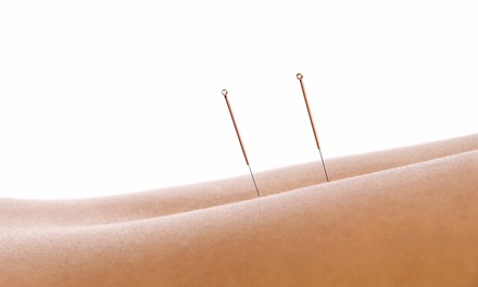 One or Three Acupuncture Treatments from Nancy Chiu at Coastal Chiropractic (Up to 67% Off)