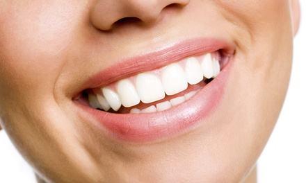 Dental Checkup or Zoom! Whitening at Presidio Dental (Up to 85% Off)