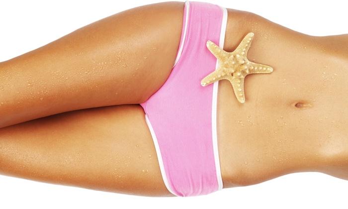 Elite Cellulite Reduction - Manassas: Two or Four Synergie Cellulite-Reduction Treatments at Elite Cellulite Reduction (Up to 83% Off)