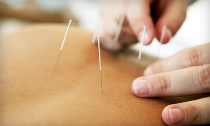 Virginia University of Oriental Medicine - Fairfax: Acupuncture Package for New or Returning Clients at Virginia University of Oriental Medicine in Fairfax (Up to 65% Off)
