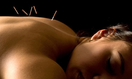 Consultation and Exam with One or Three Acupuncture Sessions (Up to 75% Off) at Seoung R. Jee, OMD, LAC
