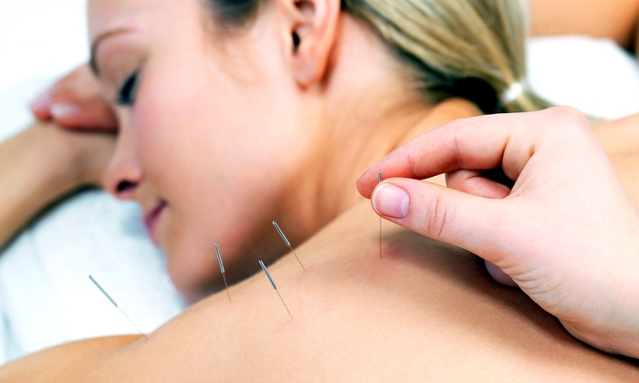 Premier Alternative Health Center - Memorial Park: $59 for a Consultation and Three Acupuncture Sessions at Premier Alternative Health Center ($205 Value)