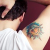 Up to 75% Off Laser Tattoo Removal