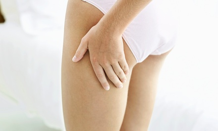Cellupulse Cellulite-Reduction Treatments at Balancing Point Center for Wellness (Up to 75% Value)