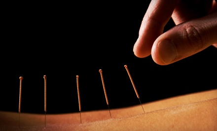 One or Three Acupuncture Sessions at West Meet East Holistic Therapy & Acupuncture Clinic (Up to 77% Off)