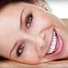 Half Off Complete Invisalign Treatment