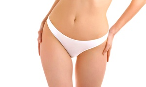 Vivo Clinic: Cryolipolysis: One (£89) or Two (£169) Areas at Vivo Clinic (Up to 77% Off)