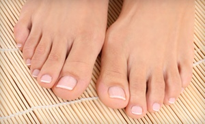 Lasting Impressions Laser: Laser Toenail-Fungus Removal for One or Both Feet at Lasting Impressions Laser (50% Off)