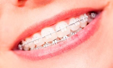 Tratamiento de ortodoncia metálica, brackets de cerámica o de zafiro u ortodoncia lingual desde 199 € en Dent I Dent