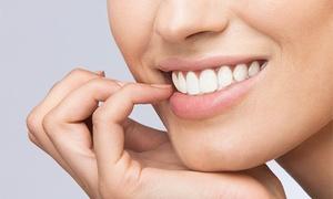 Adad: Limpieza bucal completa con revisión y fluorización por 12,90 en Siete Palmas