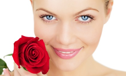 Microdermabrasion Treatment, Chemical Peel, or Both at Image Renu at Walnut Hill (Up to 61% Off)