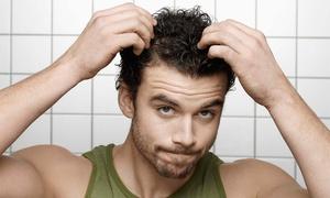 Clinica della Bellezza: Fino a 6 sedute di infoltimento capelli con laser medico Erbium Glass (sconto fino a 94%). Valido in 7 sedi