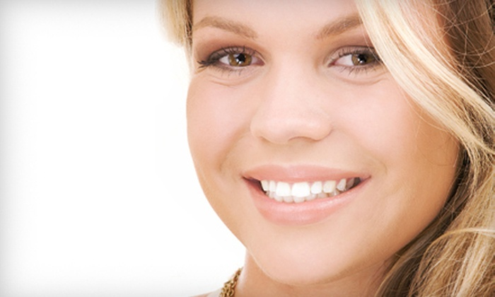 New Body Contours - The Villages: One or Two VascuTouch Facial-Vein Treatments at New Body Contours (Up to 64% Off)