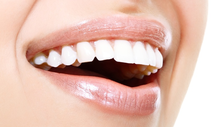 Trebbih: C$35 for At-Home Teeth-Whitening Kit from Trebbih (C$150 Value)