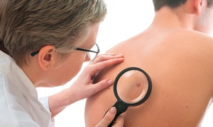 CIRUGIA DOCTOR GASOS: 1 ó 2 sesiones de eliminación de verrugas pendulares y queratosis desde 54 € en Cirugía Doctor Gasós