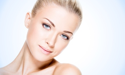 IPL Photorejuvenation with Optional Vibradermabrasion  at Oasis Med Spa and Laser Center (Up to 77% Off)