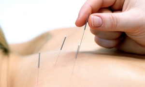 Ling's Golden Needle Acupuncture: One or Two Acupuncture Sessions at Ling's Golden Needle Acupuncture (Up to 54% Off)