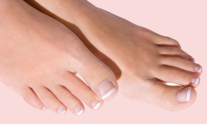 Pure Skin and Body - Skin and Body: Laser Nail-Fungus Removal for One or Both Feet at Skin and Body (Up to 59% Off)