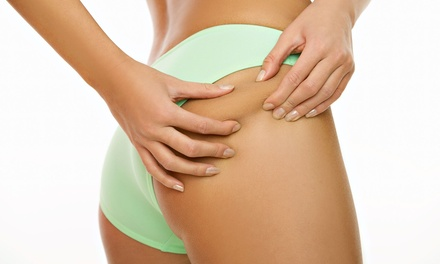 One, Two, or Three Laser-Lipo Sessions with Whole-Body Vibration at Colorado Springs Laser Like Lipo (Up to 82% Off)