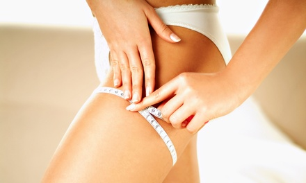 One, Four, or Eight RF and Cavitation Cellulite-Reduction Treatments for One Area at Skinetics (Up to 66% Off)