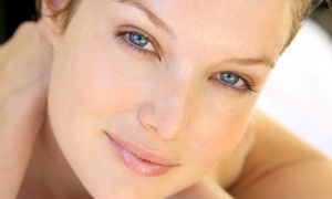 My Spa & Boutique: IPL Photofacial for the Face or Face and Neck at My Spa & Boutique (Up to 80% Off)