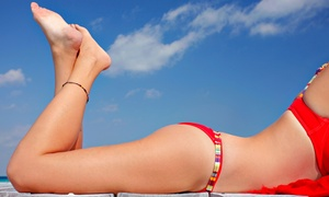 Brickell Cosmetic Center & Spa: 6 or 12 Lumicell Wave 4 Cellulite Treatments at Brickell Cosmetic Center & Spa (up to 84% off)