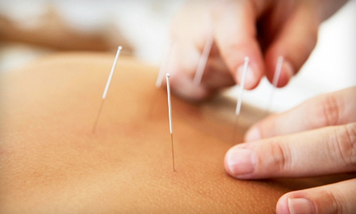 Spring Smith Acupuncture - Multiple Locations: 30-Minute Massage with Consultation and One or Two Acupuncture Sessions at Spring Smith Acupuncture (Up to 66% Off)