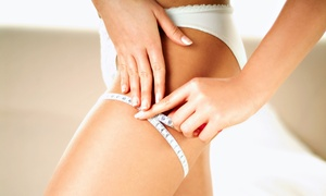 Fountain of Youth Medical Spa: 6, 9, or 12 Zerona Laser Treatments at Fountain of Youth Medical Spa (Up to 78% Off)