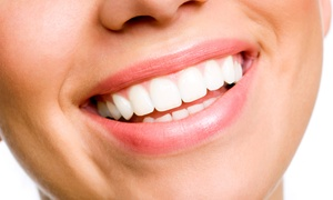 Randall Voigt, D.D.S.: Two, Four, Six, or Eight Veneers with X-rays and Exam from Randall Voigt, D.D.S. (Up to 62% Off)