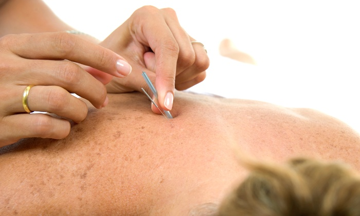 YangHeal Health and Wellness Centre - Richmond Hill: Acupuncture and Acne Treatments at YangHeal Health and Wellness Centre        (Up to 68% Off). Four Options.