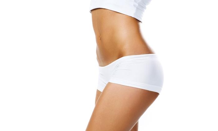 Sente Bella - The Marina District : 6, 9, or 12 Zerona Body-Contouring Treatments at Sente Bella (Up to 69% Off)