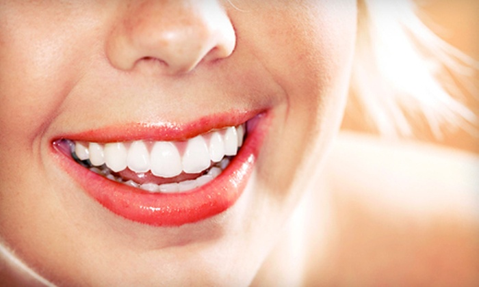 Remington Dental Care - Sunnyvale: $99 for Two Opalescence Boost Teeth-Whitening Sessions at Remington Dental Care in Sunnyvale ($450 Value)