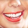 78% Off Teeth Whitening in Sunnyvale