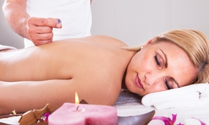 Balanced Life and Acupuncture: $29 for an Acupuncture Treatment and Initial Consultation at Balanced Life And Acupuncture ($115 Value)