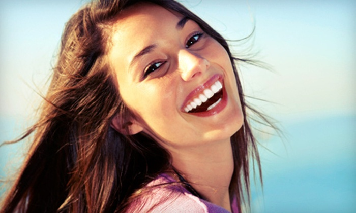 Fringe Hair Design - Downtown: $79 for a 60-Minute Teeth-Whitening Session at Fringe Hair Design ($223.50 Value)